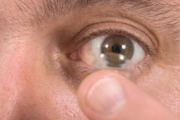 British-woman-didnt-know-she-had-27-contact-lenses-on-one-eye